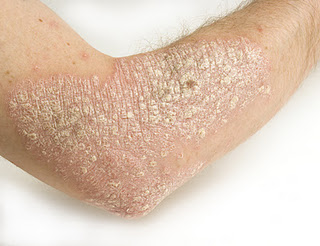 skin rashes can be caused by contact with allergens