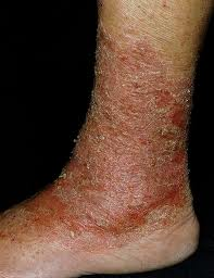 stasis dermatitis is associated with poor circulation