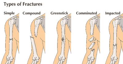 Bone Fracture Classification