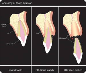 Dental Trauma, Part 2: Tooth Knocked Out – 4/13/12