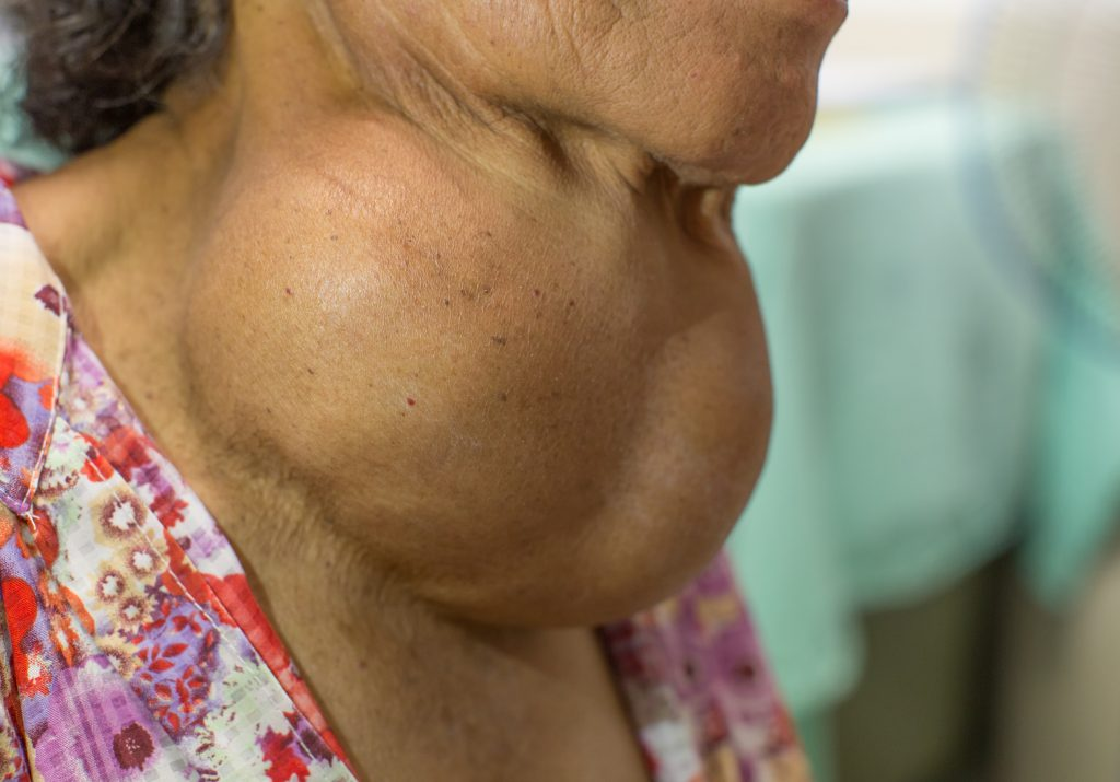 Thyroid Disease in Tough Times