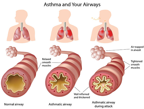 Video: Asthma in Survival, part 3: Natural Remedies
