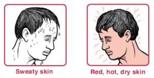 sweaty skin dry skin