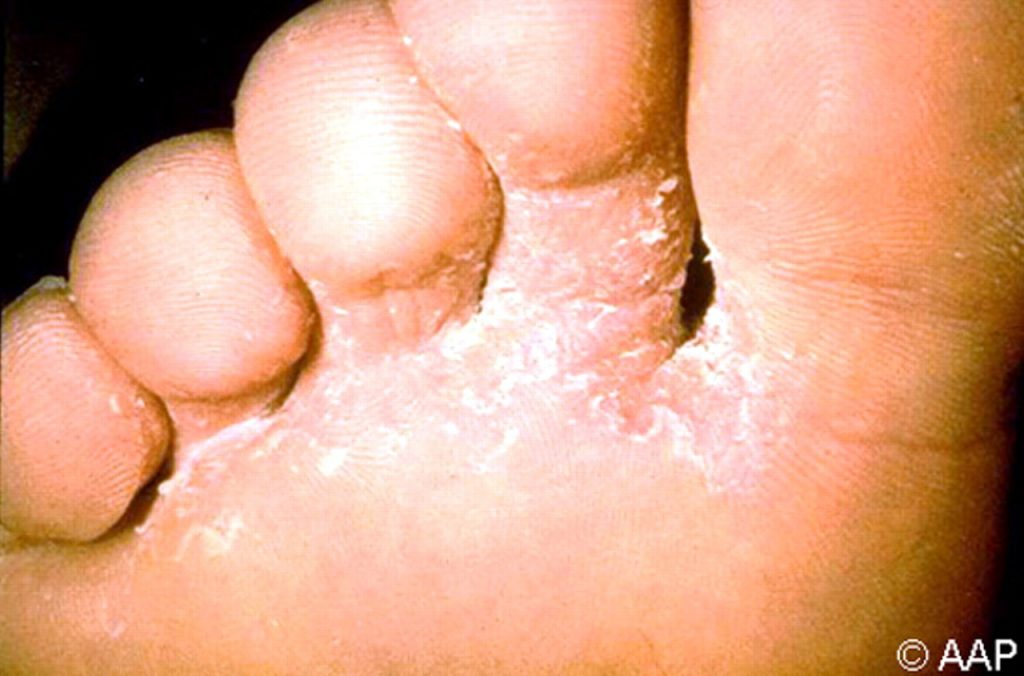 Foot Fungus Diagnosis, Treatment, and Prevention