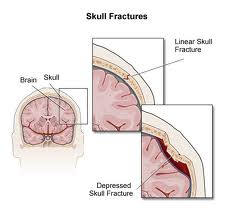 Indentations in the skull