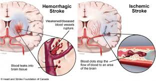 stroke hemorrhagic vs ischemic