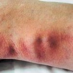thrombophlebitis superficial