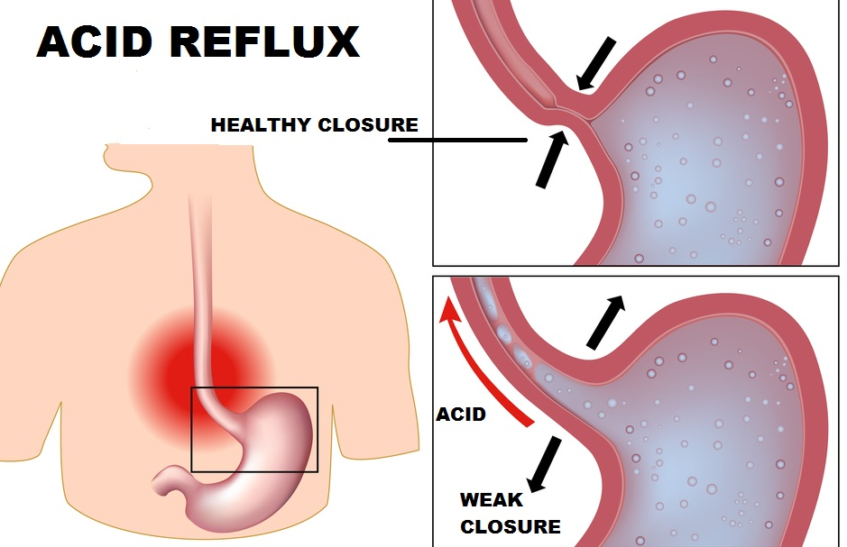 G.E.R.D. (Severe Acid Reflux) Off The Grid
