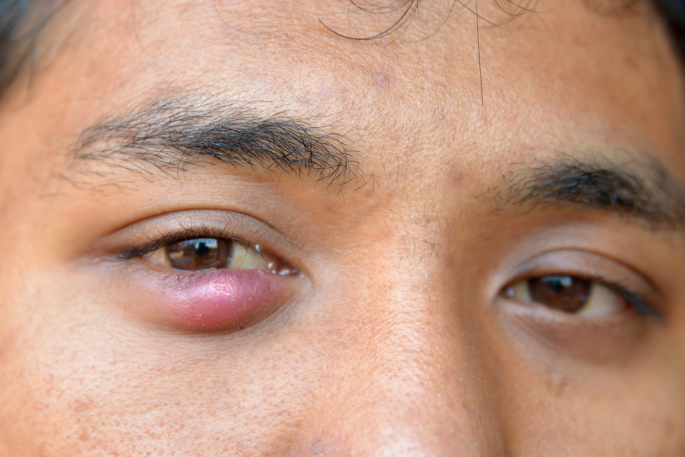 How To Treat a Stye