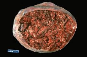 maternal surface of placenta