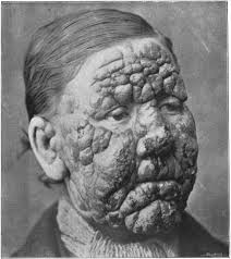 Leprosy in the U.S.