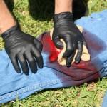 Direct Pressure on Bleeding Wound