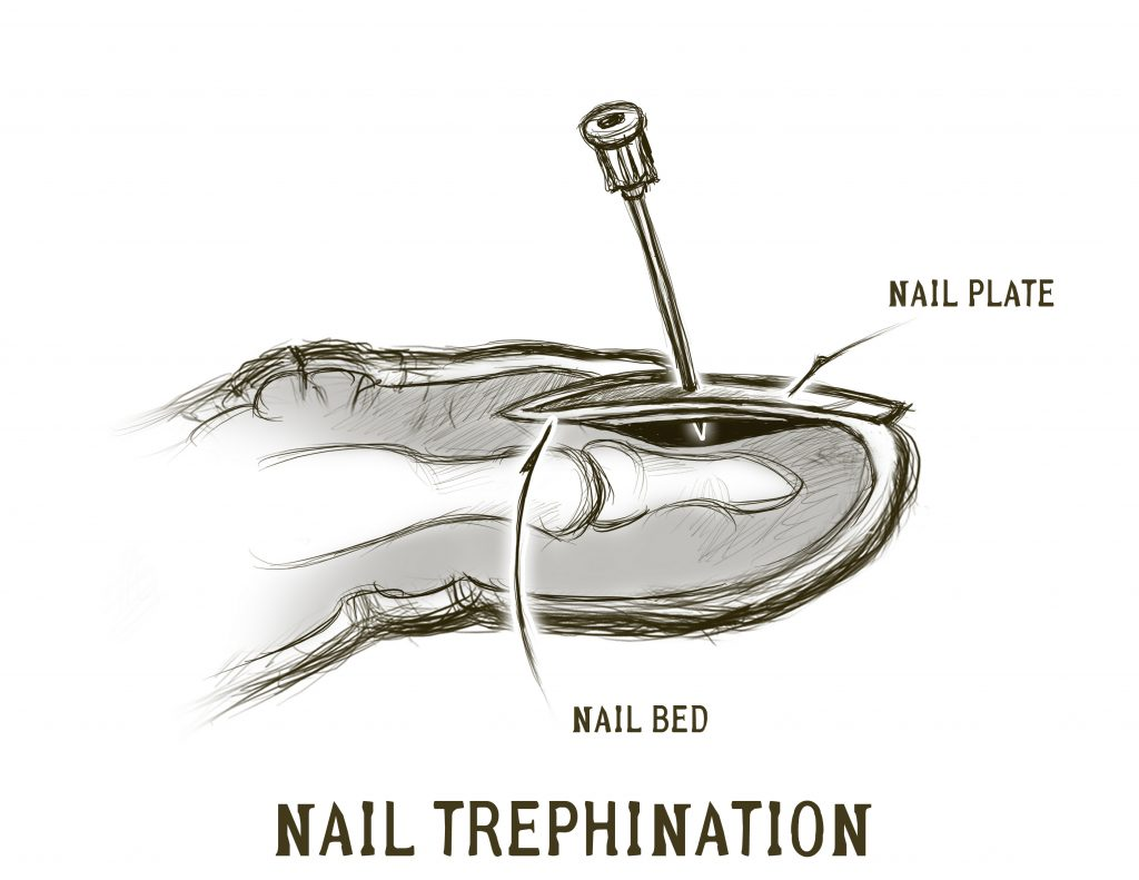 Injuries to the nail bed doom and bloom tm its important to know that damage to the base of the nail the germinal matrix may be difficult to completely repair and that future nail growth may be pooptronica Choice Image