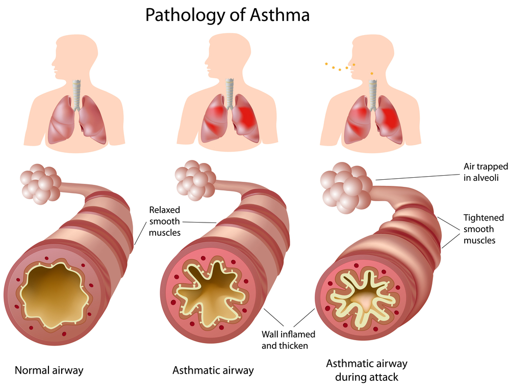 Asthma In Survival