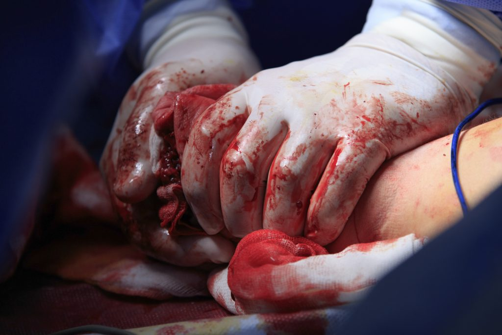 VIDEO: A Kit to Manage Hemorrhage in Action