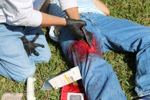 Learn how to stop bleeding in wounds