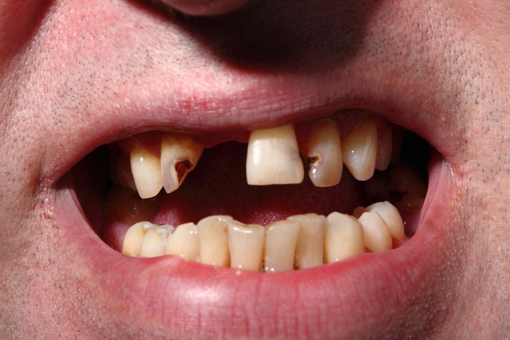 Tooth Abscesses in Austere Settings