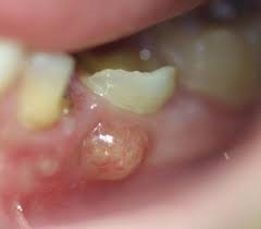 abscess in lower molar