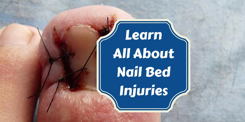 How to Treat Nailbed Injuries   Medical Preparedness   Doom and ...