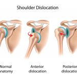this is what an anterior and posterior dislocation looks like