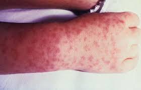 typhus rash (brittanica.com)