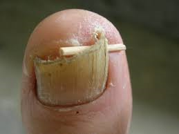 conservative management of ingrown nail