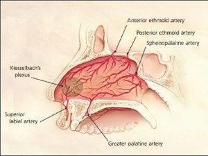Nasal Anatomy (common area of nosebleed origin circled)