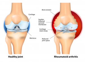 Changes seen in rheumatoid arthritis