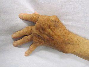 Severe rheumatoid arthritis