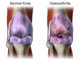 osteoarthritic changes to the knee