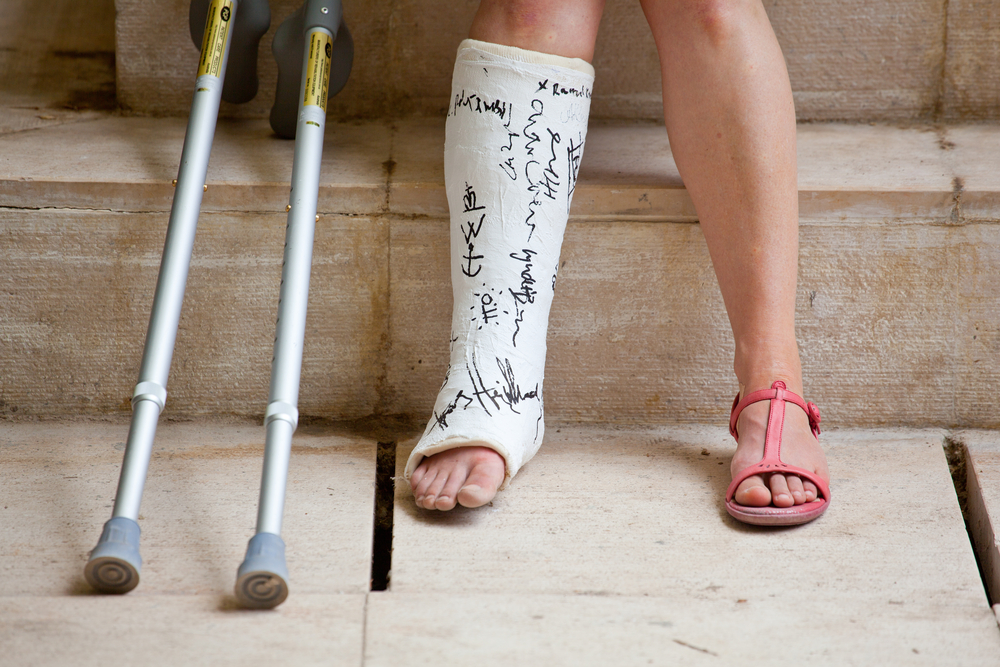 Fractures, Bones Contusions, And Sprains
