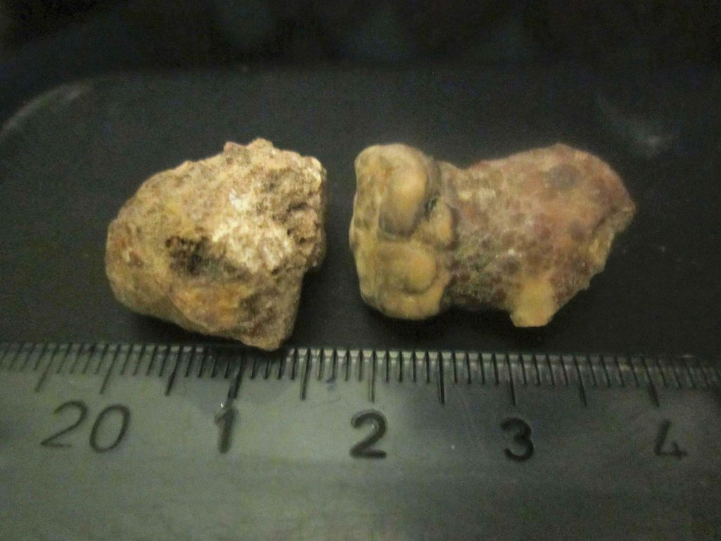 Kidney Stones: Diagnosis, Treatment, Prevention