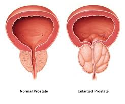 normal prostate vs BPH