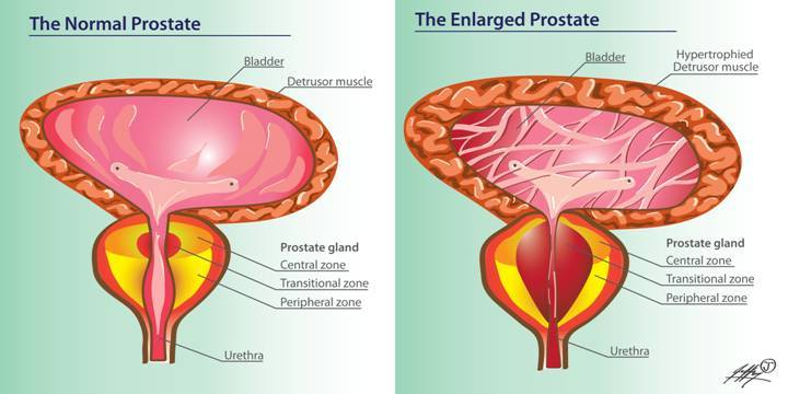 All About Benign Prostatic Hyperplasia