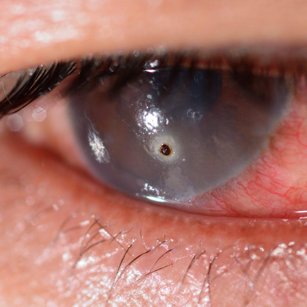 Video: Eye Trauma