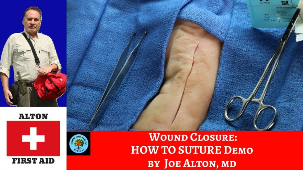 Video: Wound Closure, Part 3: Placing Sutures