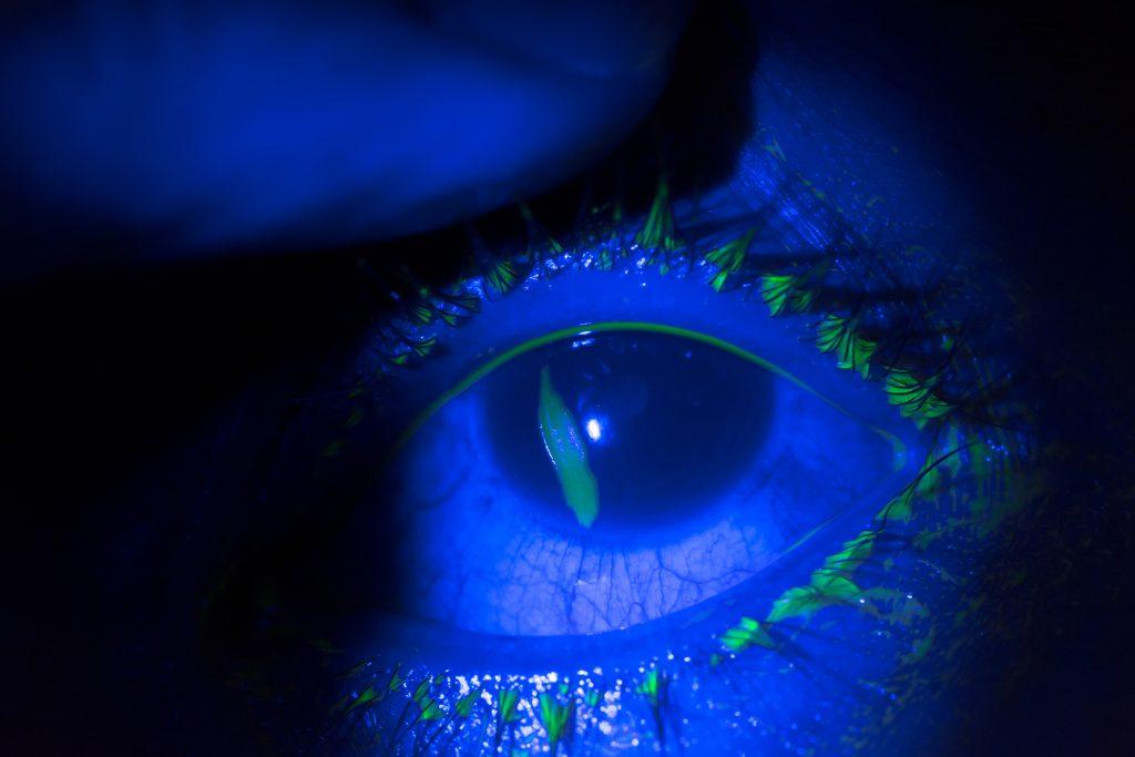 Eye Trauma Off The Grid