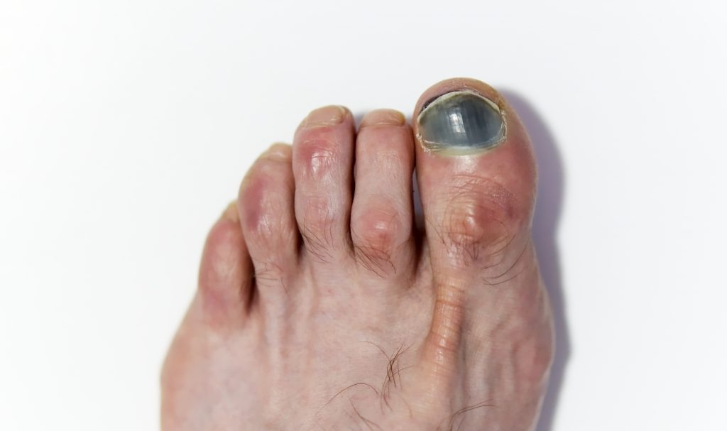 Nail Bed Issues Off The Grid
