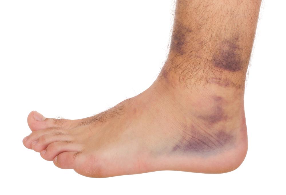 Ortho Injuries: Sprains, Strains, Ruptures